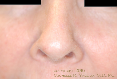 This 69 year-old woman underwent resection of a basal cell carcinoma by MOHs and did not want a composite graft from the ear, a full-thickness skin graft from the neck, or skin rotated from her cheek or forehead for the repair., set 1